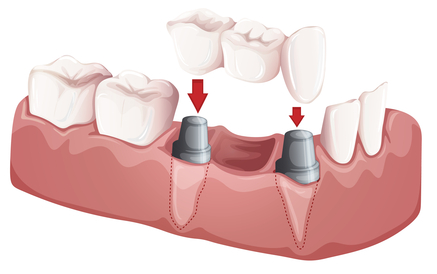 implant assisted bridge